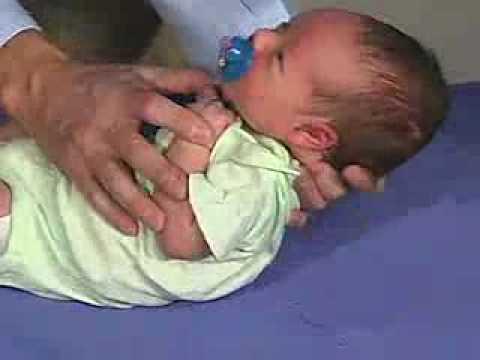 Moro Reflex in infants
