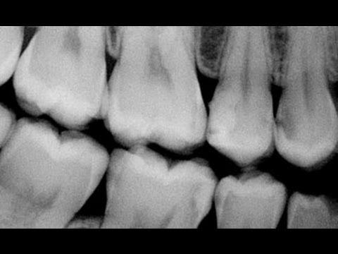 xray of perfect teeth - photo #40