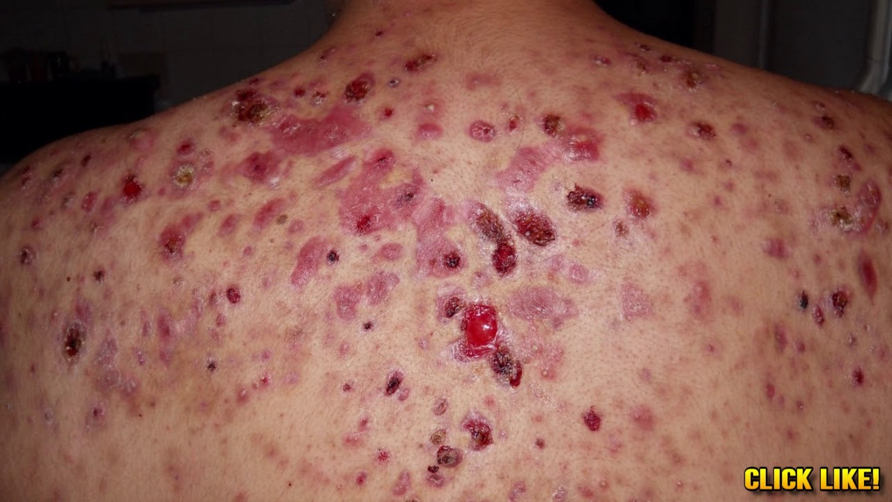 World's Worst Back Acne! What is Bacne?