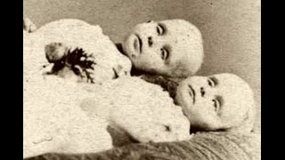 Victorian Era Creepy old Post-Mortem pictures.