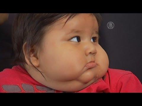 Как посадить ребенка на диету 7 лет