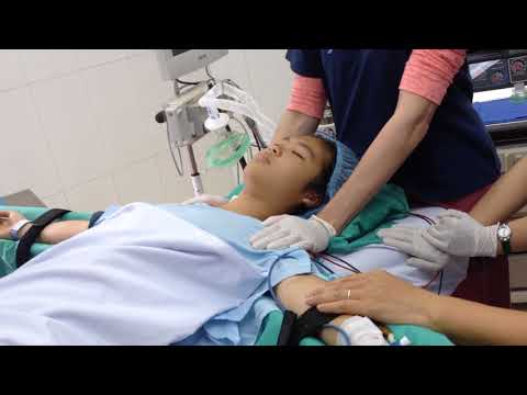MMC OR Pre General Anesthesia/Anesthesia complete 24 Mar 2015 7815