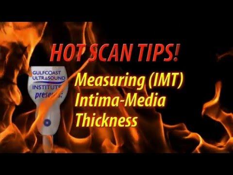 Hot Tip-Measuring Intima Media Thickness