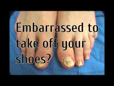severe fungal nail infection treatment