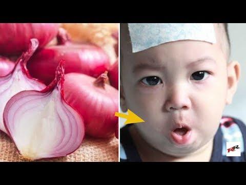 Batuk dan Pilek Pada Bayi merupakan sesuatu hal yang wajar terjadi, namun, apabila batuk pilek tersebut tak kunjung sembuh....