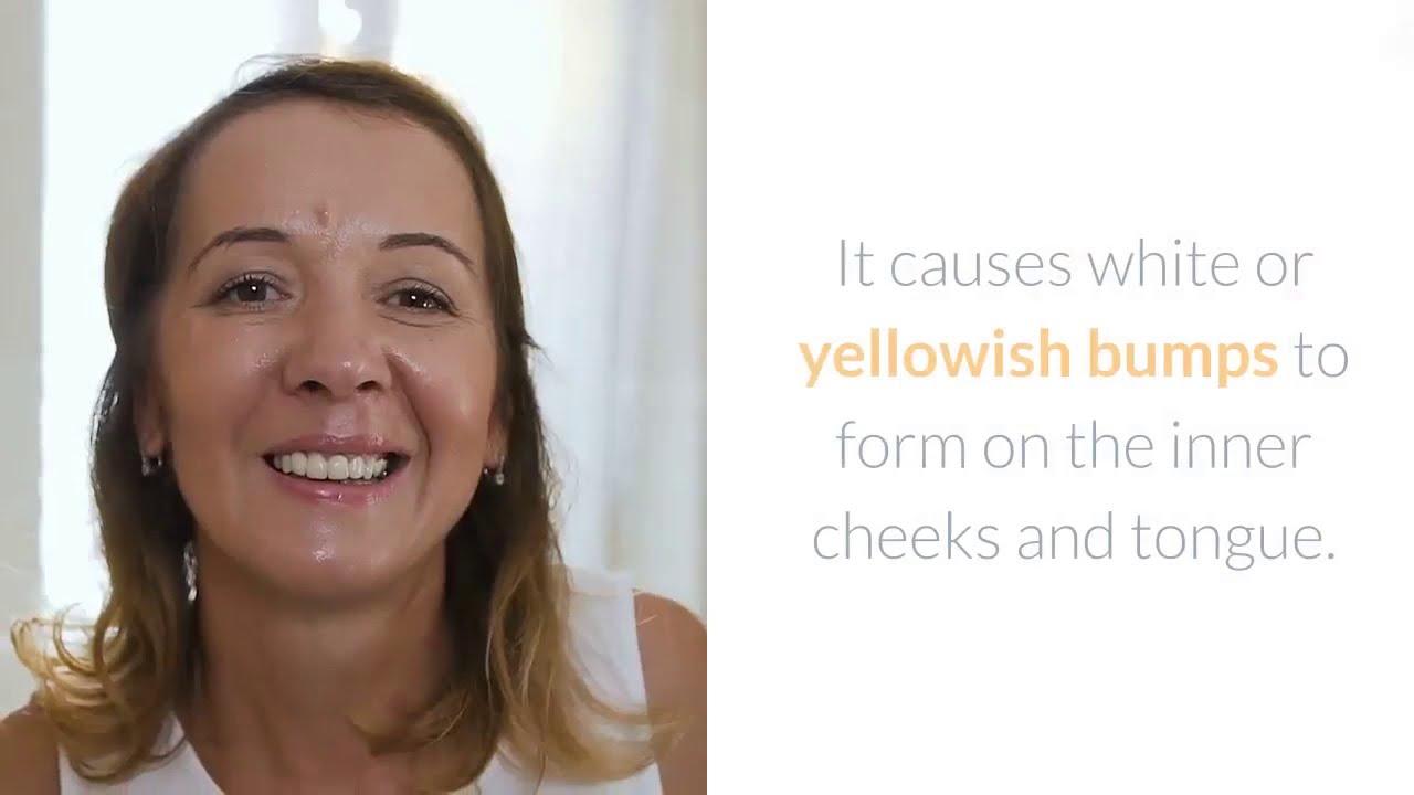candida thrush home remedy