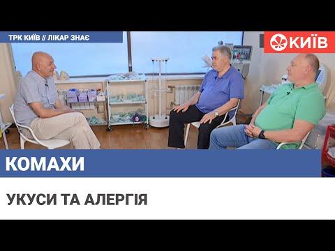 Телеканал Київ: Укуси комах: як їх відрізнити і що робити