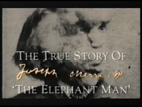 The Elephant man - QED - Documentary - The True Story Of Joseph Merrick