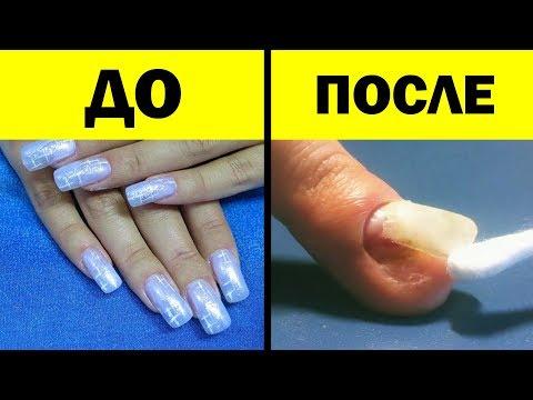 Без лака болят ногти