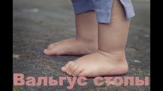 видео Вальгусная деформация стоп у детей