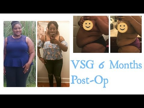 VSG 6 Months Post-Op South Korea Edition (Photos Included)