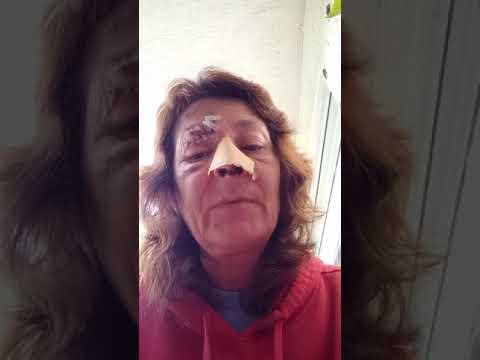 Medical malpractice/facial reconstruction