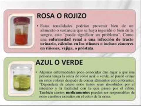 Lo que el color de la orina revela sobre la salud de cada - Significado de los colores de las rosas ...