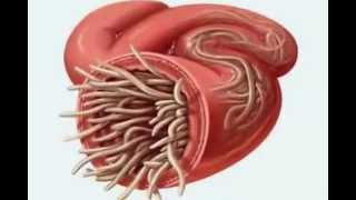 Repeat youtube video Parasite Cleanse  -