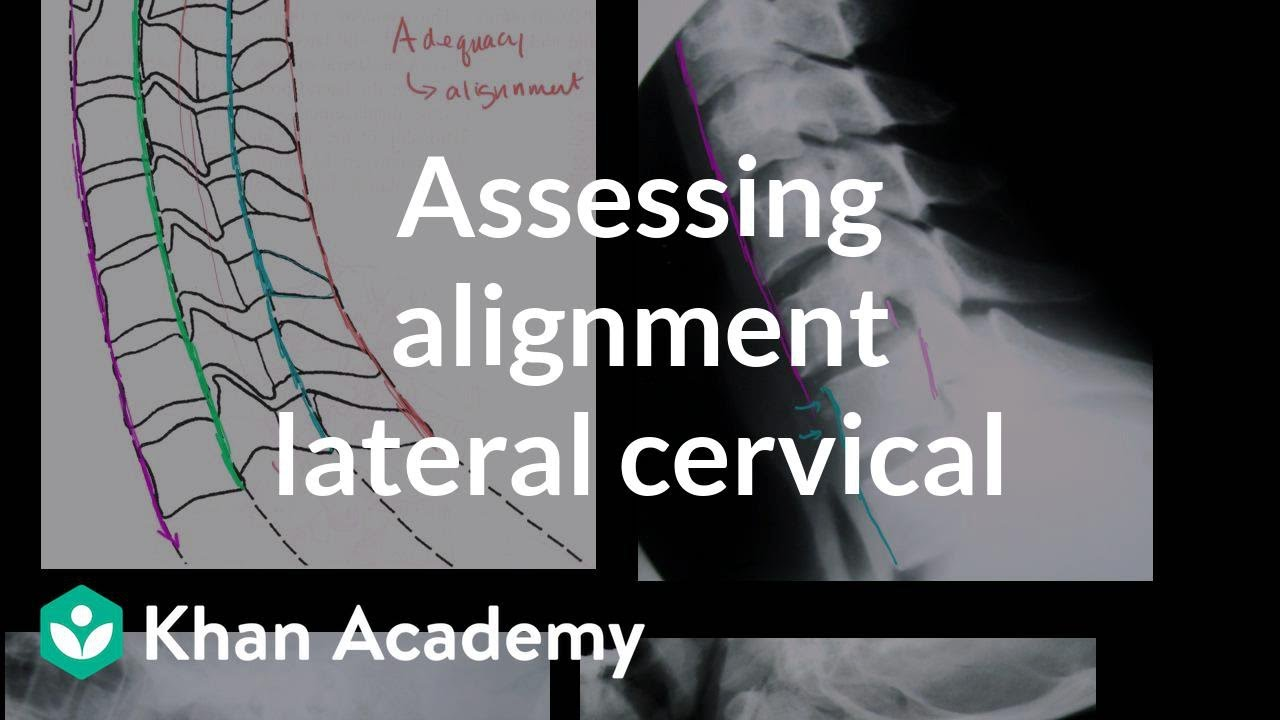 Assessing alignment of the lateral cervical spine (neck) X