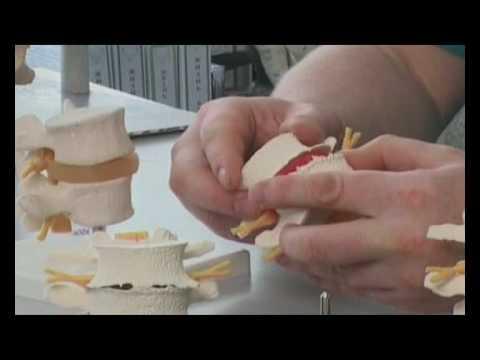 Тромб в сосудах шейного отдела