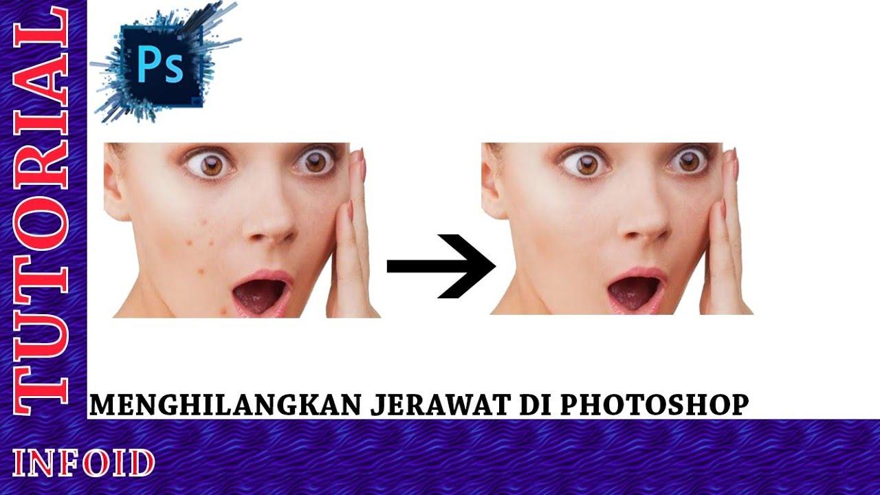 Cara Menghilangkan jerawat di photoshop - YouTube