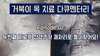 [거북이목 치료 다큐] EP02- 두번째 치료만에 상경…