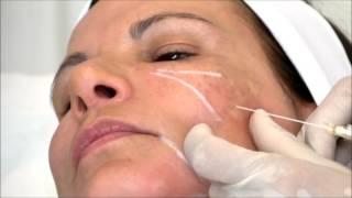 Dr Laurent Dumas - Injection de Radiesse dans la vallée des larmes