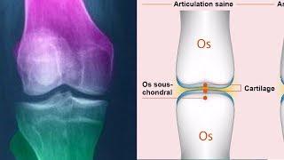 Comment soigner et régénérer le cartilage du genou naturellement