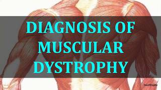 DIAGNOSIS OF MUSCULAR DYSTROPHY