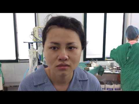 Nâng mũi bọc sụn Hàn Quốc - Viện Thẩm Mỹ Y Khoa Dr. Hải Lê