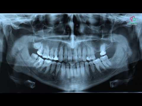 Pantomogram - co lekarz zobaczy na zdjęciu?