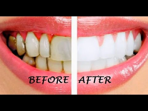 How To Whiten Your Teeth In 5 Easy Steps Best Tutorial Gone Right