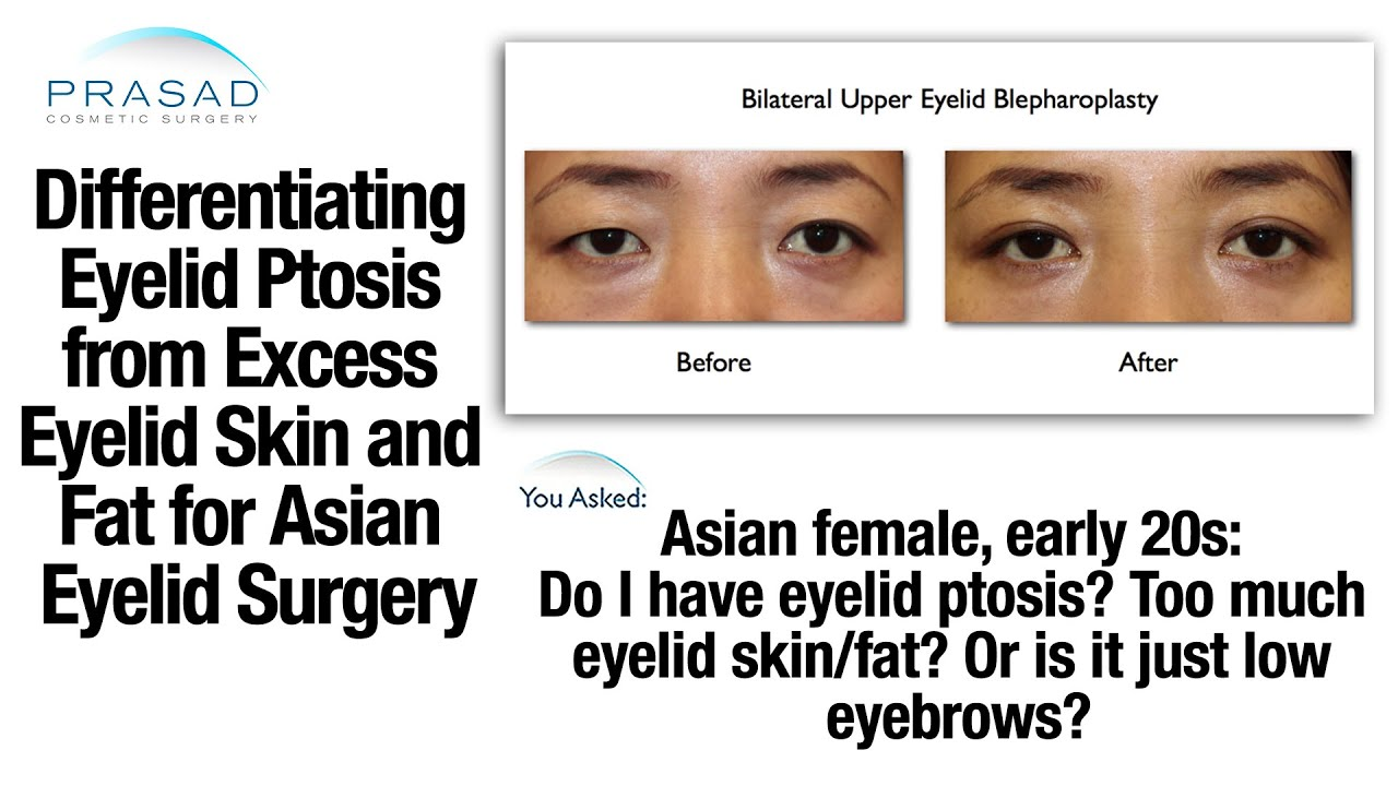 how to tell the difference between asians