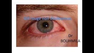 OPHTALMOLOGIE Œil rouge non douloureux (2)