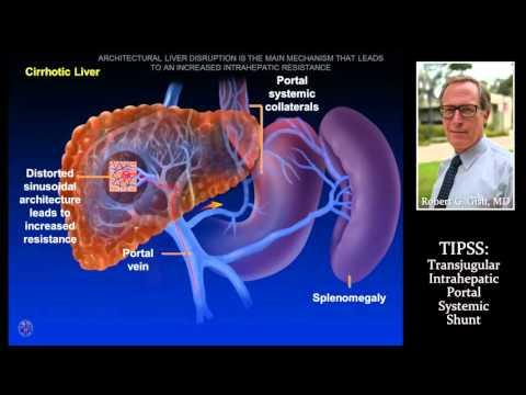 Spleen Presentation sonography 111