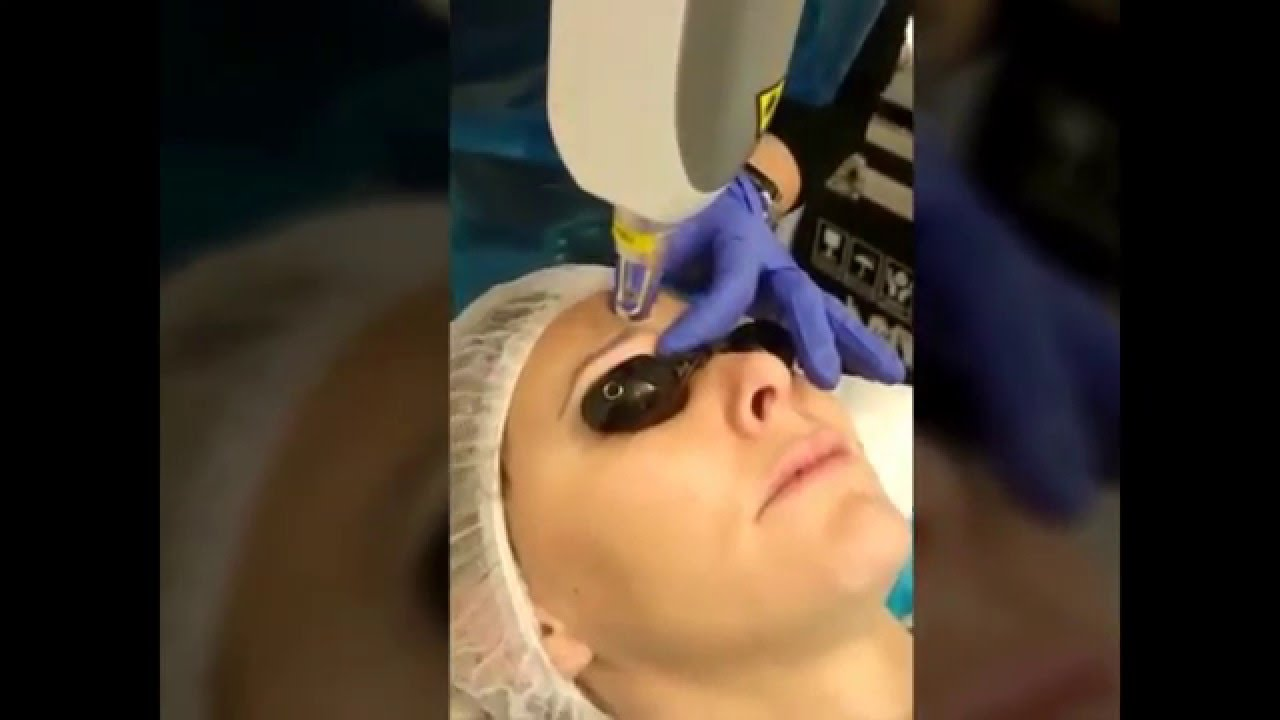 Eyebrow Tattoo Removal Permanent Makeup Before And After Youtube