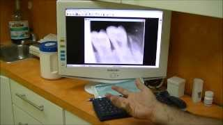 Dental Digital X-ray System Explained. Advantages And Knuckle X-ray Test