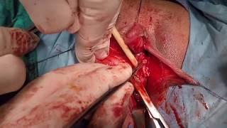 Операция по СМЕНЕ ПОЛА+18(Из ЖЕНЩИНЫ в МУЖЧИНУ)