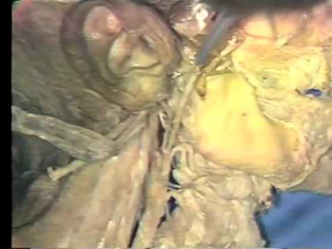 Gross Anatomy: External Carotid Artery - Retrostyloid Region - YouTube