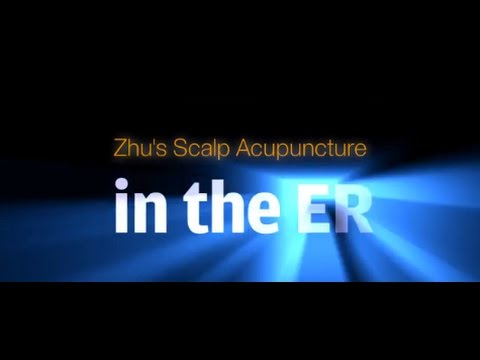 Zhu's Scalp Acupuncture in the ER