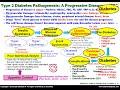 Type 2 Diabetes Pathogenesis Flowchart   Death to Diabetes