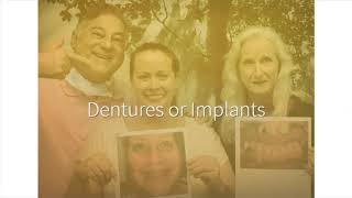 Full Mouth Dental Implants And Dentures | 561-627-5560