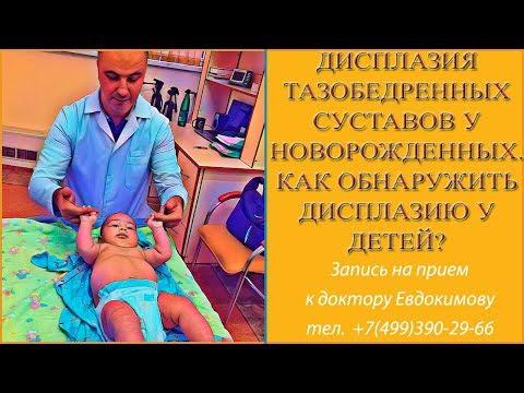 Дисплазия тазобедренных суставов у новорожденных. Как обнаружить дисплазию у детей? Симптомы