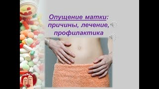 Опущение матки: причины, лечение и профилактика