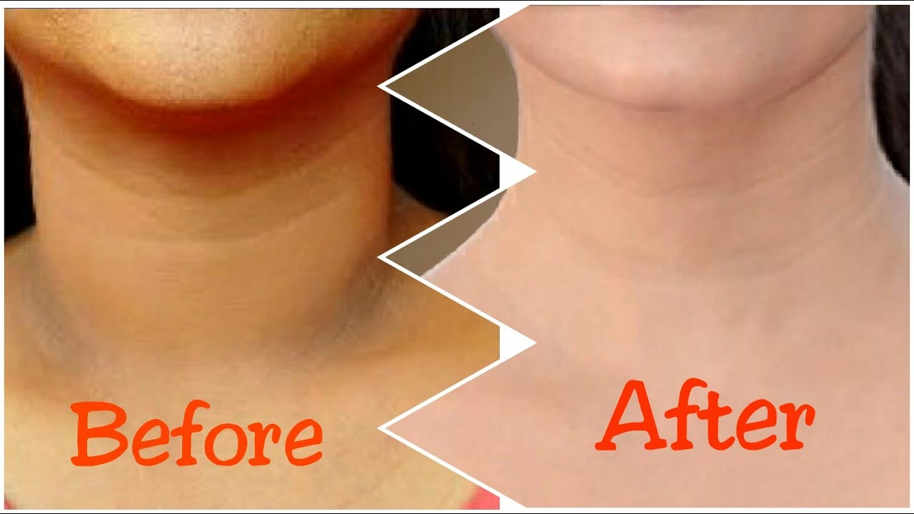 How To Get Rid Of Dark Skin On Neck Naturally