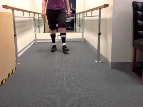 Charcot Marie Tooth - Walking in Bilateral Dynamic GRAFO