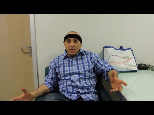 Trapianto Capelli Turchia - Testimonianza dell'attore  Massimiliano M. - Dott.ssa Öykü ÇELEN