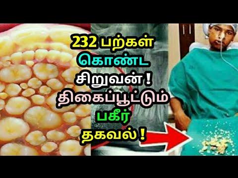 Download 232 பற்கள் கொண்ட சிறுவன் ! திகைப்பூட்டும் பகீர் தகவல் ! A boy with 232 teeth ! Tamil news