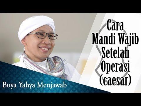 Cara Mandi Wajib Setelah Operasi (caesar) - Buya Yahya Menjawab