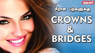 Dentist Vidya sabari| Crowns and bridges| Kumudam
