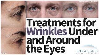How to Treat Wrinkles Under and Around the Eyes