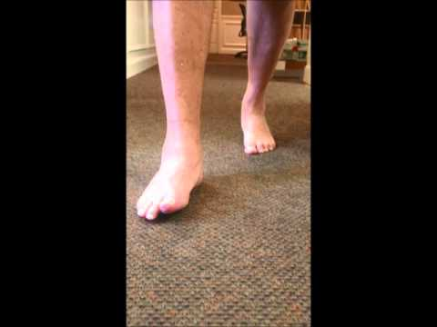 gait-after-triple-arthrodesis-surgery-for-pttd-sfism