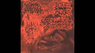 Blenorrhagical Spermatocystitis/Vomiting Shit/BoneAche/WxIxAxPxWxAxCx (Full Split)