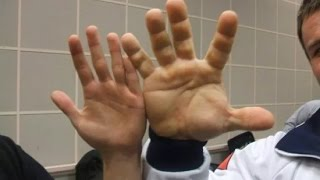 Real-Life Hulk Has the Biggest Hands You've Ever Seen